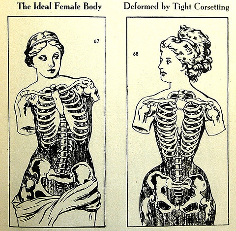 The female body in corset