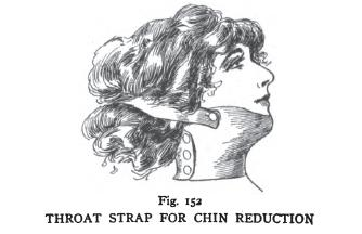 chin reduction